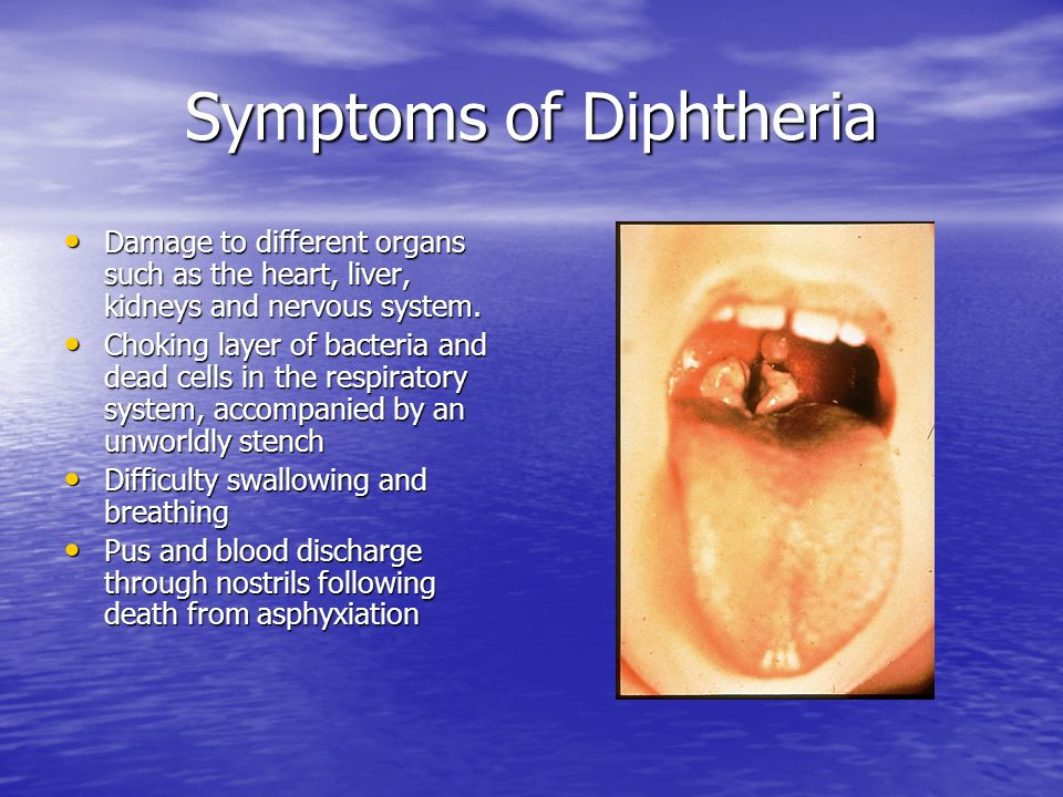 Symptoms of Diphtheria Damage to different organs such as the heart, liver, kidneys and nervous system.