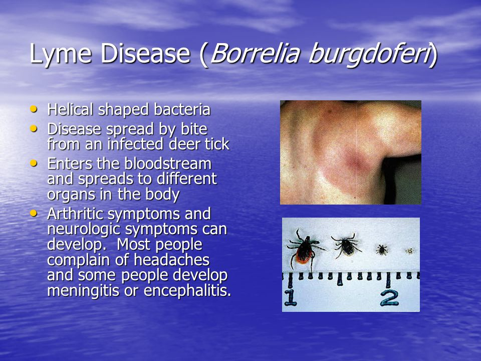 Lyme Disease (Borrelia burgdoferi) Helical shaped bacteria Disease spread by bite from an infected deer tick Enters the bloodstream and spreads to different organs in the body Arthritic symptoms and neurologic symptoms can develop.
