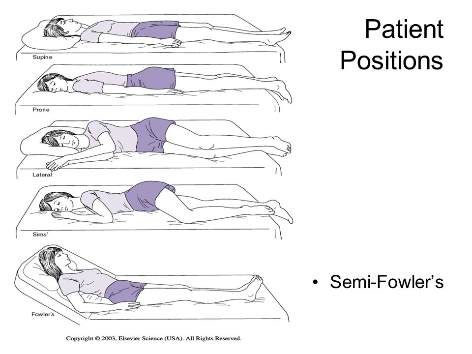 Patient Positions Semi-Fowler's