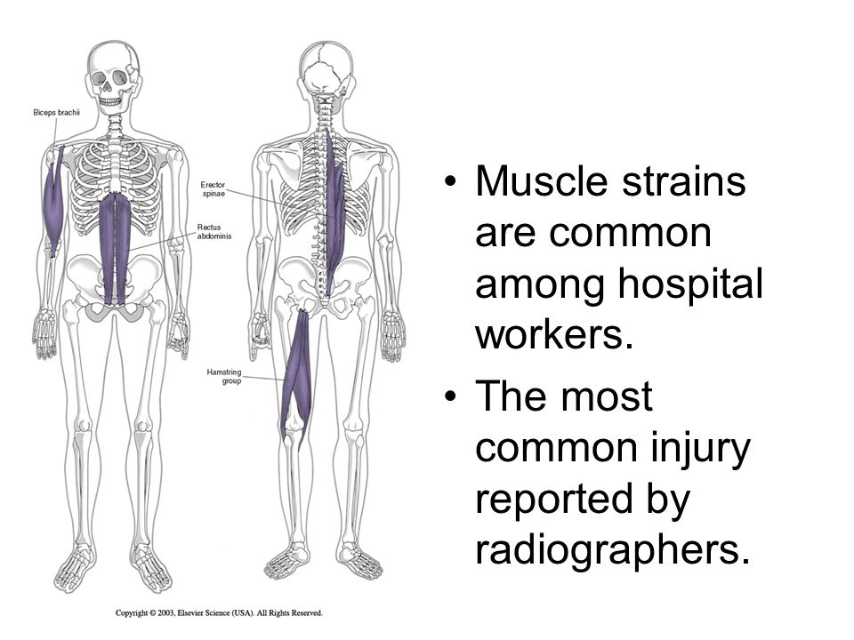 Muscle strains are common among hospital workers. The most common injury reported by radiographers.