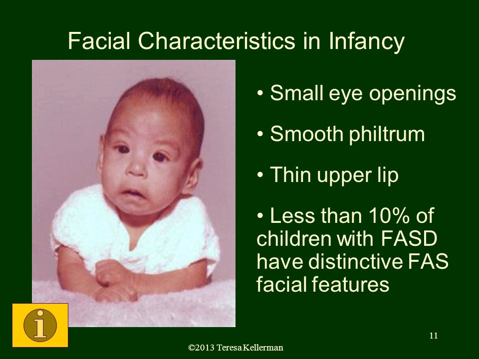 ©2013 Teresa Kellerman 11 Facial Characteristics in Infancy Small eye openings Smooth philtrum Thin upper lip Less than 10% of children with FASD have distinctive FAS facial features