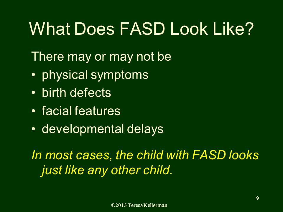©2013 Teresa Kellerman 9 What Does FASD Look Like.