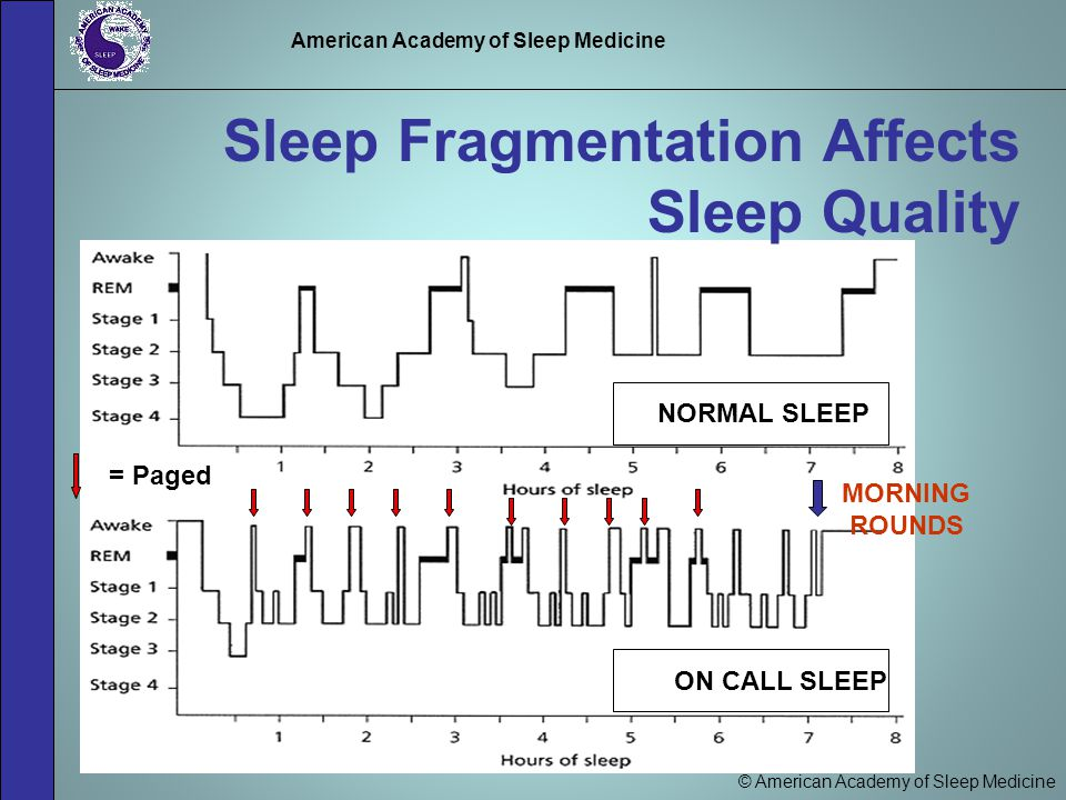 © American Academy of Sleep Medicine American Academy of Sleep Medicine Sleep Fragmentation Affects Sleep Quality = Paged NORMAL SLEEP ON CALL SLEEP MORNING ROUNDS