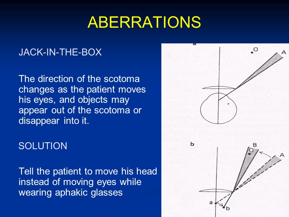 ABERRATIONS JACK-IN-THE-BOX The direction of the scotoma changes as the patient moves his eyes, and objects may appear out of the scotoma or disappear into it.