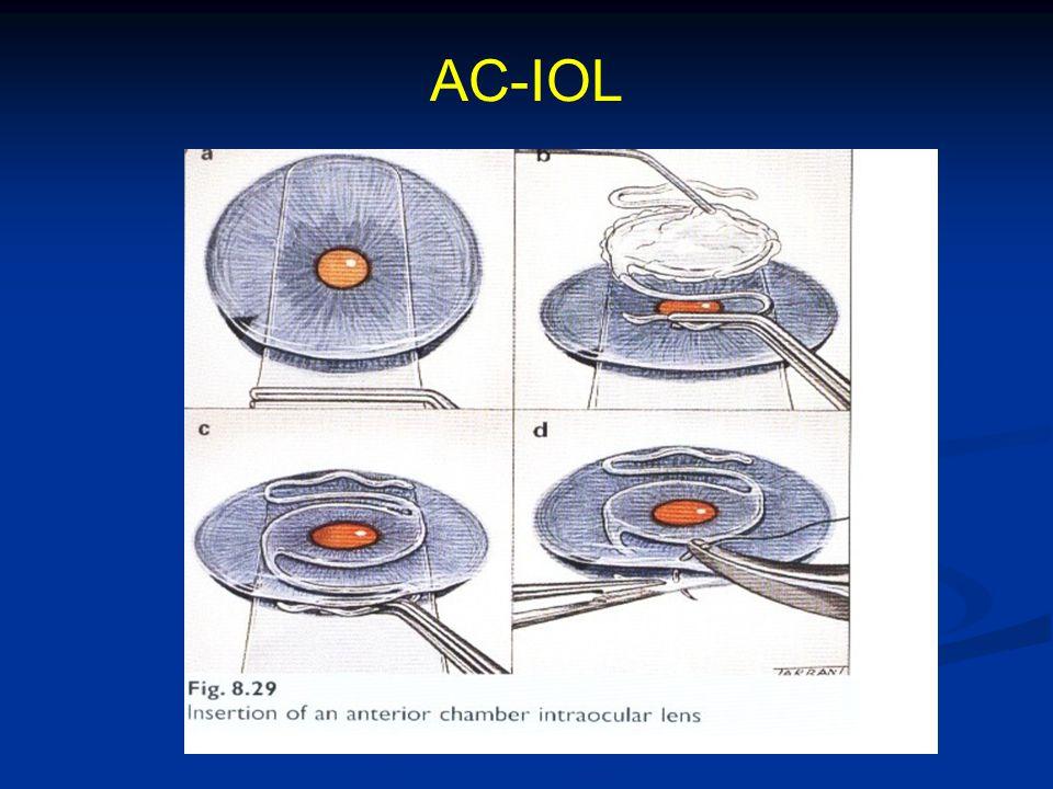 AC-IOL