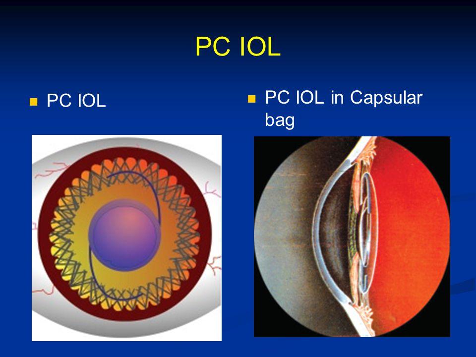 PC IOL PC IOL in Capsular bag