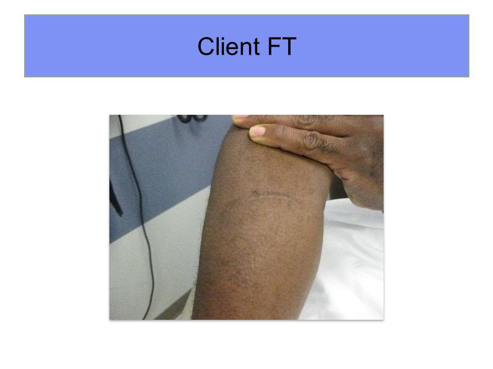 Client FT