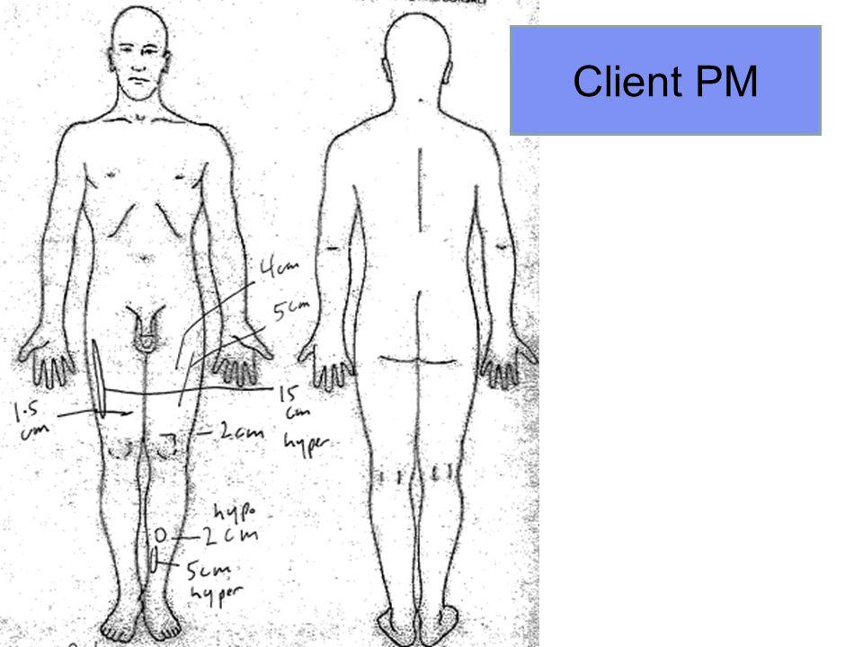 Client PM