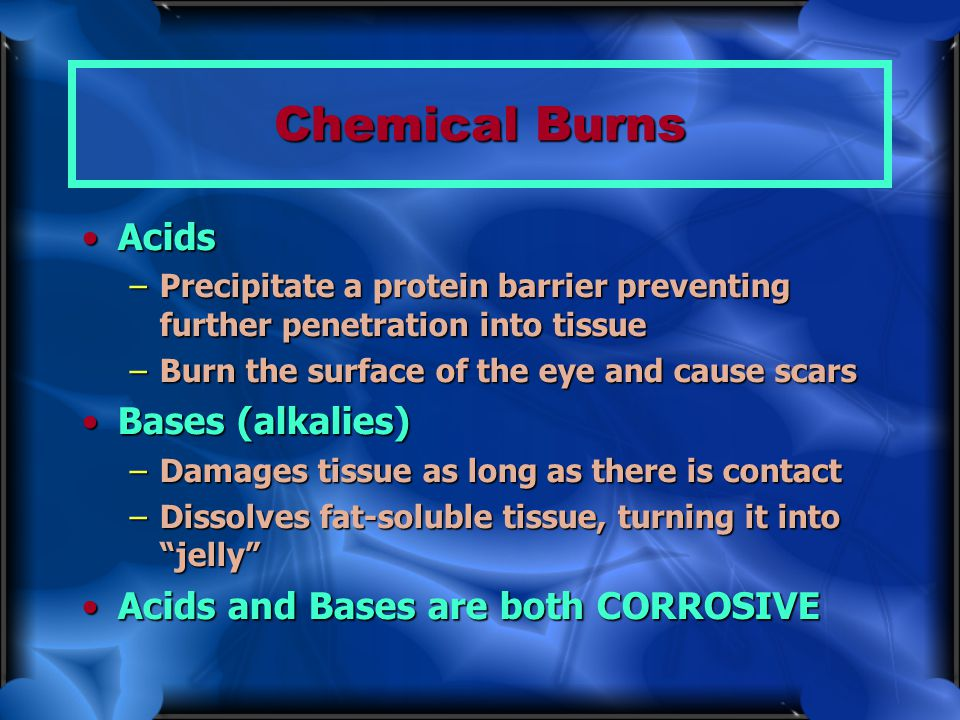 Chemical Burns AcidsAcids –Precipitate a protein barrier preventing further penetration into tissue –Burn the surface of the eye and cause scars Bases