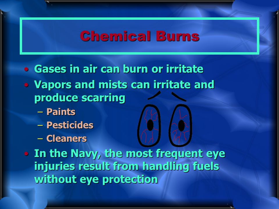 Chemical Burns Gases in air can burn or irritateGases in air can burn or irritate Vapors and mists can irritate and produce scarringVapors and mists c