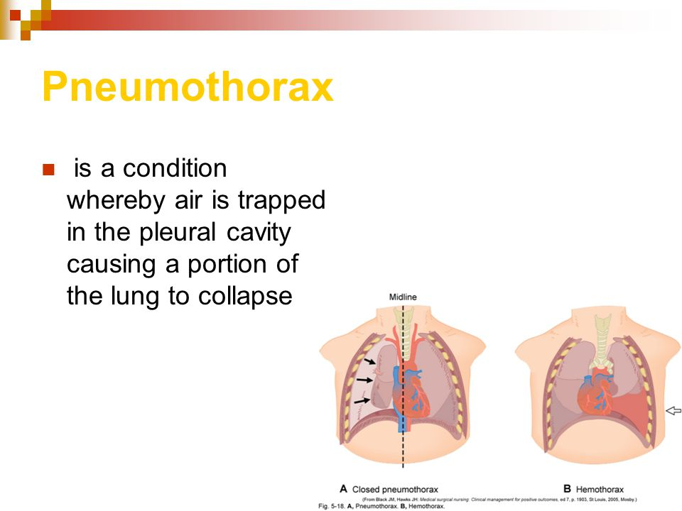 Pneumothorax is a condition whereby air is trapped in the pleural cavity causing a portion of the lung to collapse