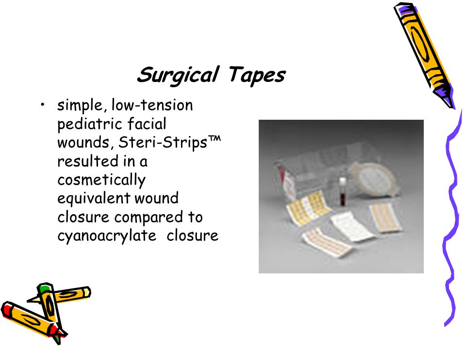 Surgical Tapes simple, low-tension pediatric facial wounds, Steri-Strips™ resulted in a cosmetically equivalent wound closure compared to cyanoacrylat