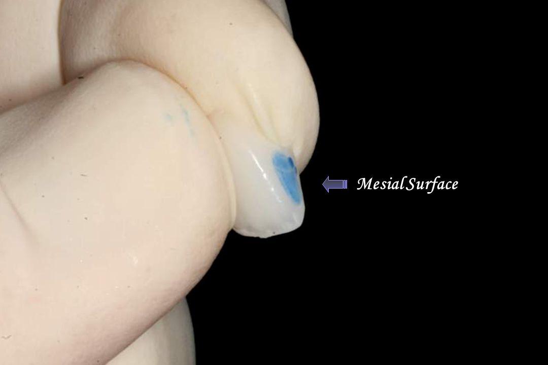 Dry Erase Marker Mesial Surface