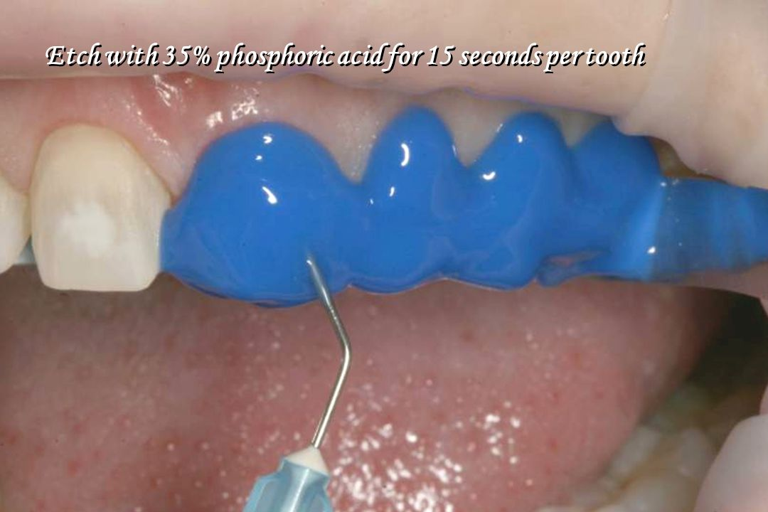 Etch with 35% phosphoric acid for 15 seconds per tooth
