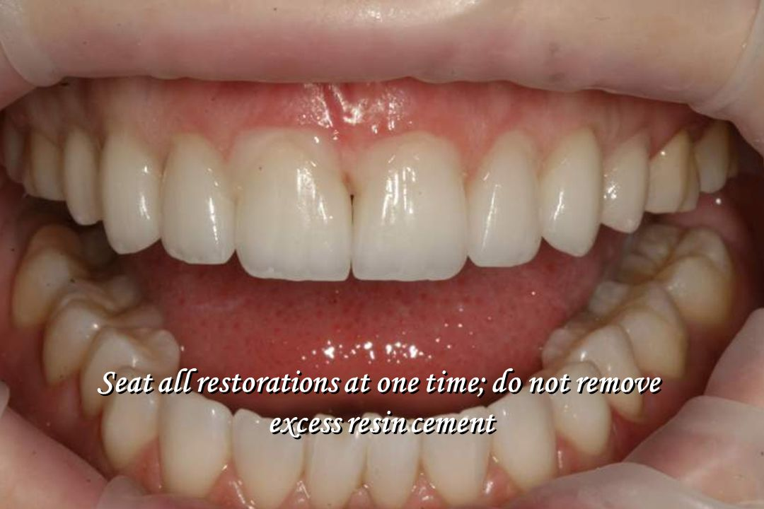 Seat all restorations at one time; do not remove excess resin cement Seat all restorations at one time; do not remove excess resin cement