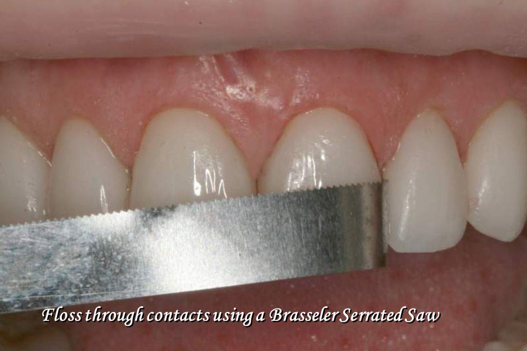 Floss through contacts using a Brasseler Serrated Saw
