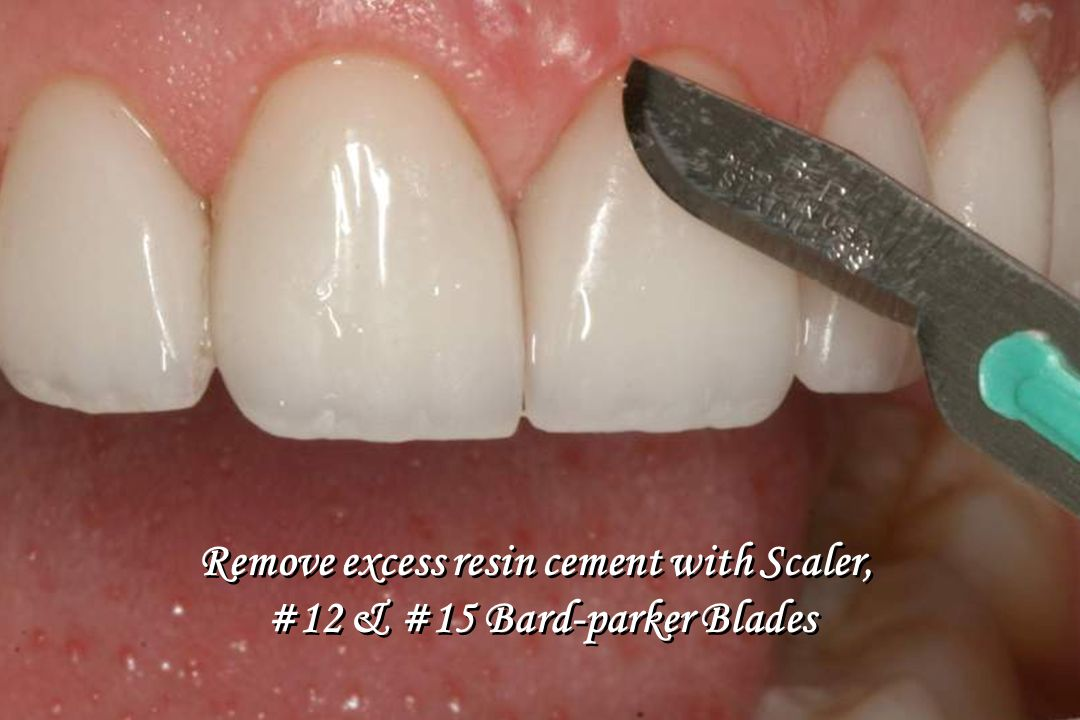 Remove excess resin cement with Scaler, #12 & #15 Bard-parker Blades Remove excess resin cement with Scaler, #12 & #15 Bard-parker Blades
