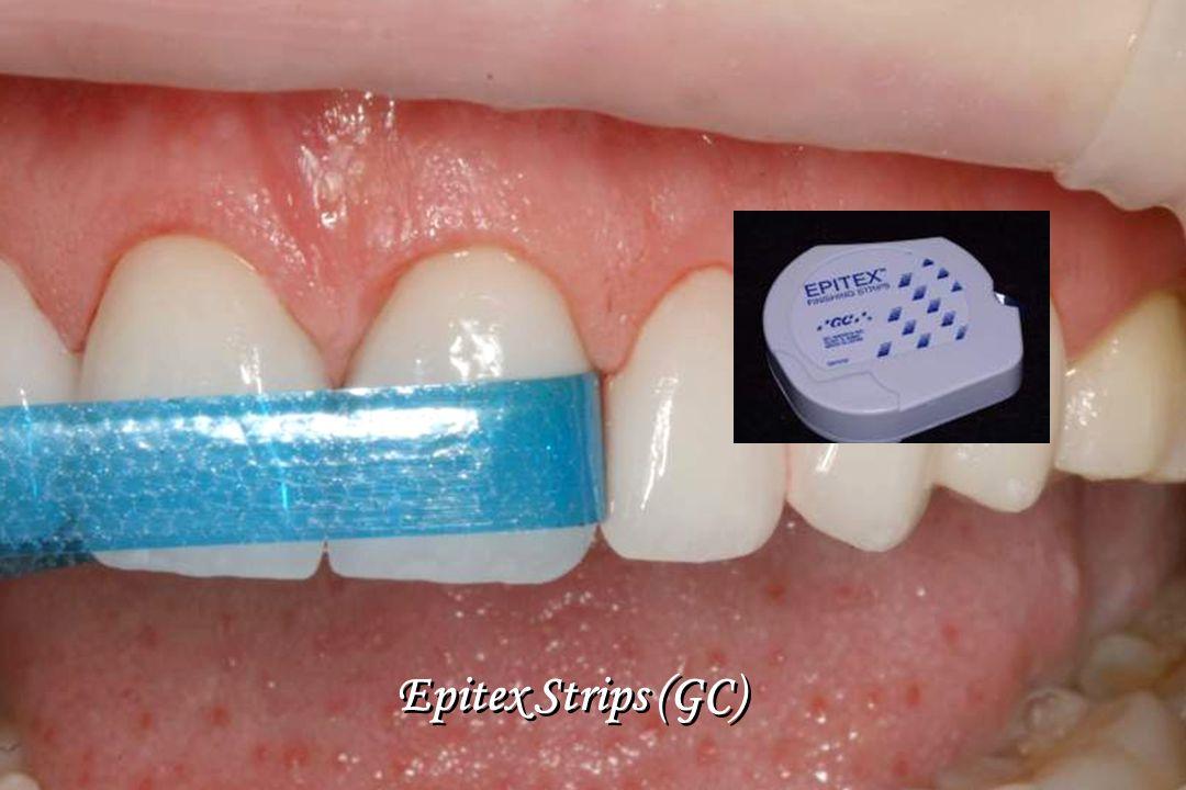 Epitex Strips (GC)