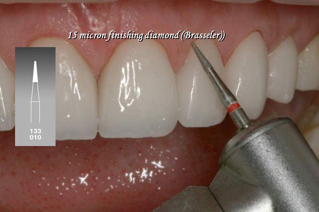 15 micron finishing diamond (Brasseler))