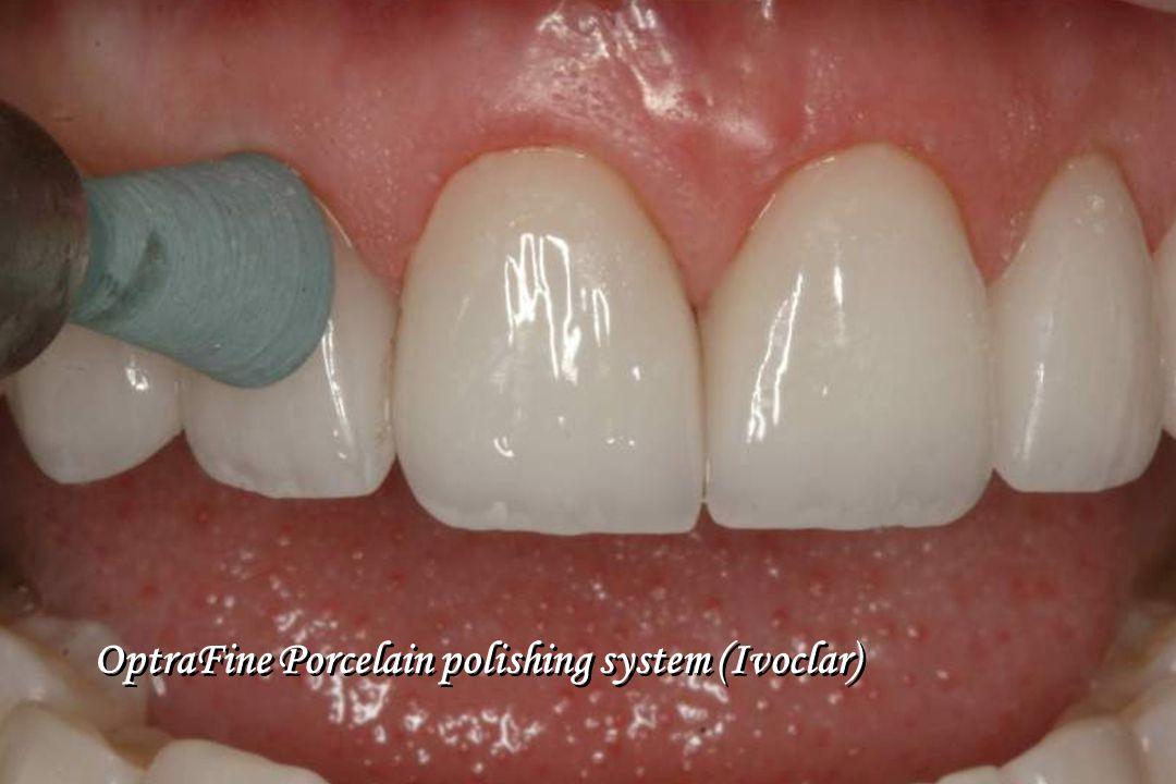 OptraFine Porcelain polishing system (Ivoclar)