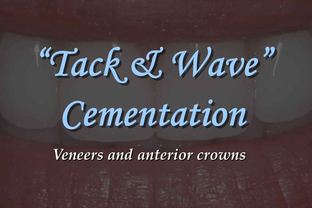 """""""Tack & Wave"""" Cementation Veneers and anterior crowns"""