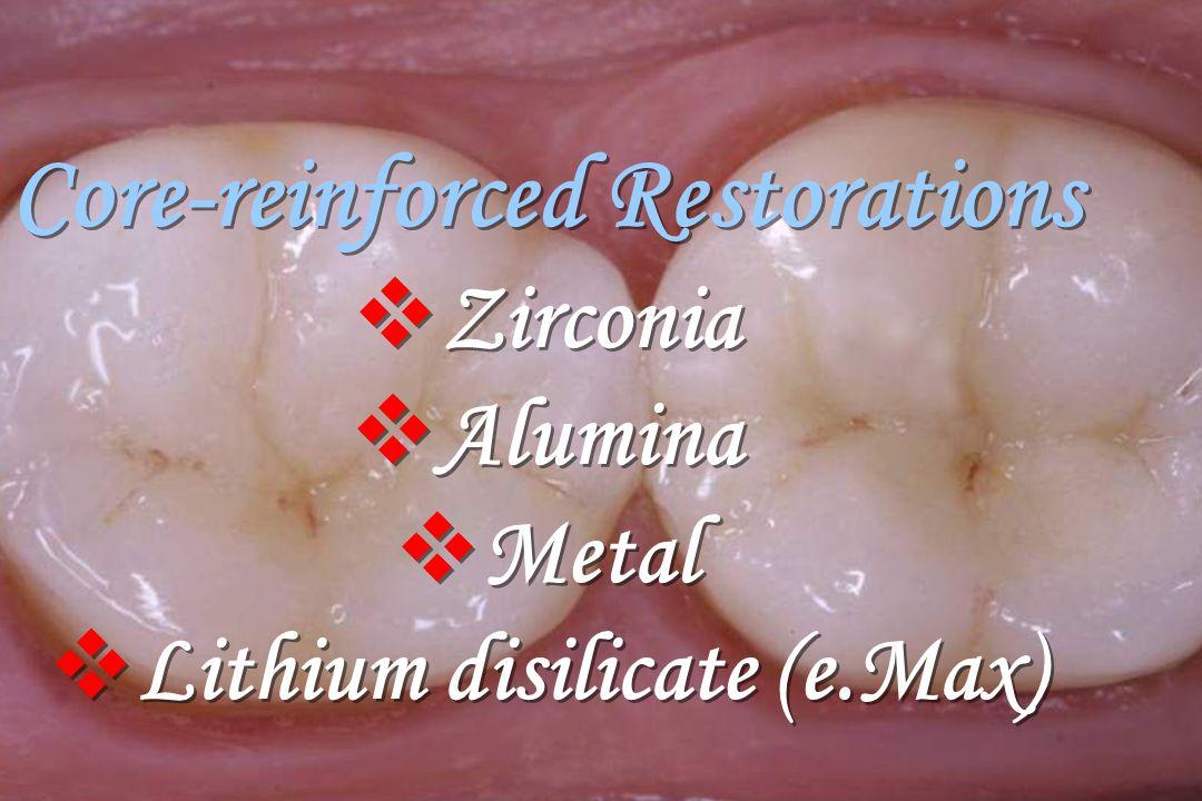 Core-reinforced Restorations  Zirconia  Alumina  Metal  Lithium disilicate (e.Max) Core-reinforced Restorations  Zirconia  Alumina  Metal  Lit