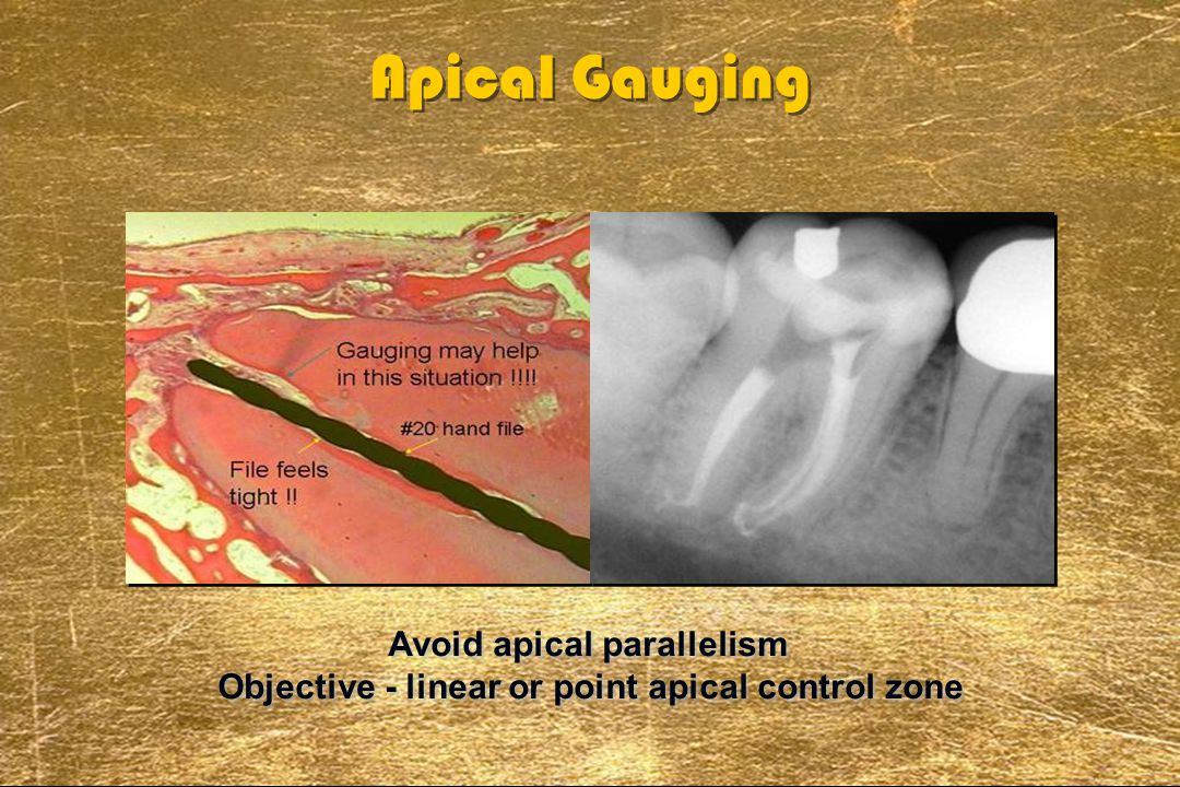 Apical Gauging Avoid apical parallelism Objective - linear or point apical control zone Avoid apical parallelism Objective - linear or point apical co