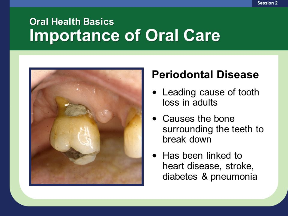 Oral Health Basics Importance of Oral Care Periodontal Disease Leading cause of tooth loss in adults Causes the bone surrounding the teeth to break down Has been linked to heart disease, stroke, diabetes & pneumonia Session 2