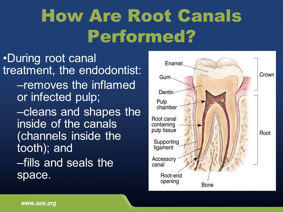 How Are Root Canals Performed.