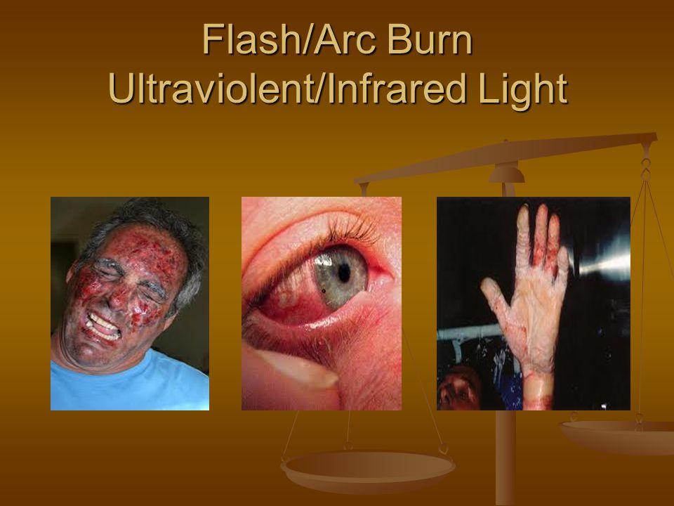 Flash/Arc Burn Ultraviolent/Infrared Light