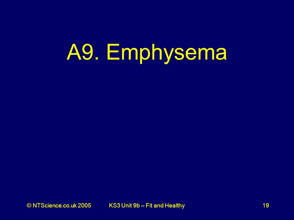 © NTScience.co.uk 2005KS3 Unit 9b – Fit and Healthy19 A9. Emphysema