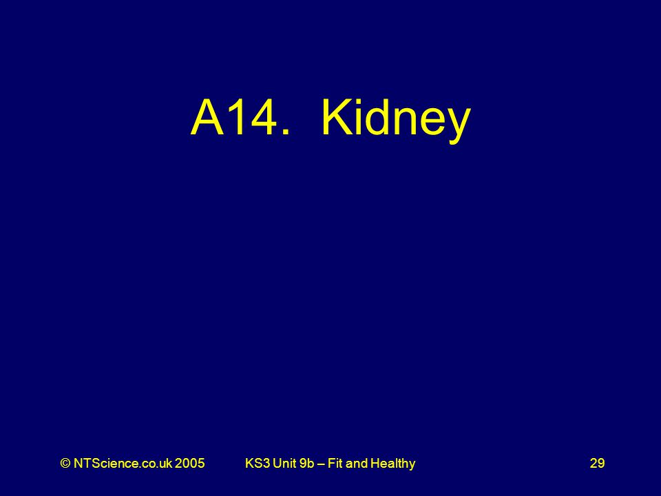 © NTScience.co.uk 2005KS3 Unit 9b – Fit and Healthy29 A14. Kidney