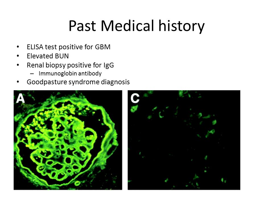 Past Medical history ELISA test positive for GBM Elevated BUN Renal biopsy positive for IgG – Immunoglobin antibody Goodpasture syndrome diagnosis