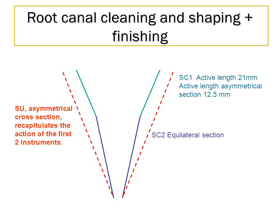 Root canal cleaning and shaping + finishing SC2 Equilateral section SC1 Active length 21mm Active length asymmetrical section 12.5 mm SU, asymmetrical