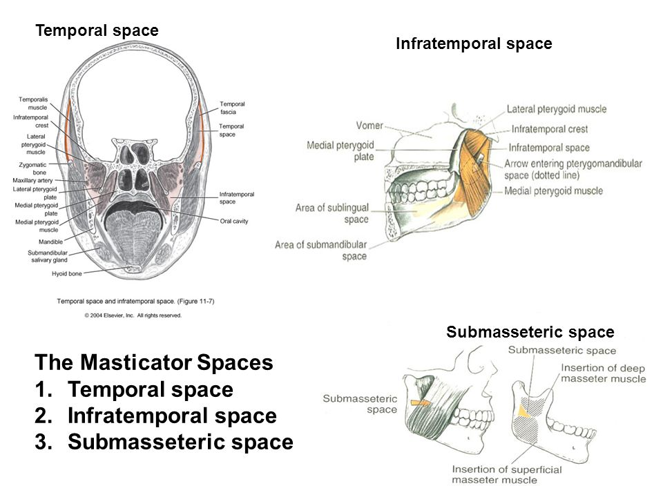The Masticator Spaces 1.Temporal space 2.Infratemporal space 3.Submasseteric space Temporal space Submasseteric space Infratemporal space