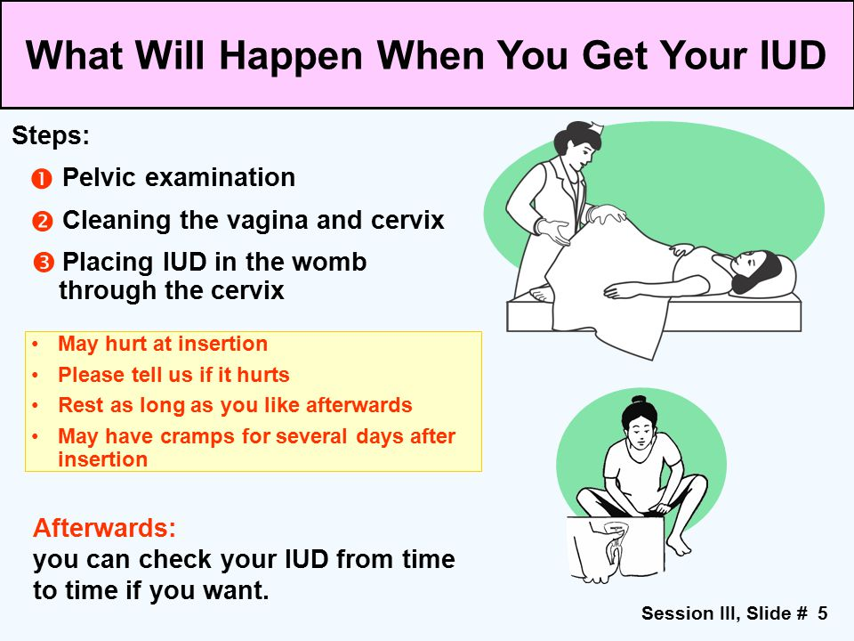 Session III, Slide # 5 May hurt at insertion Please tell us if it hurts Rest as long as you like afterwards May have cramps for several days after ins