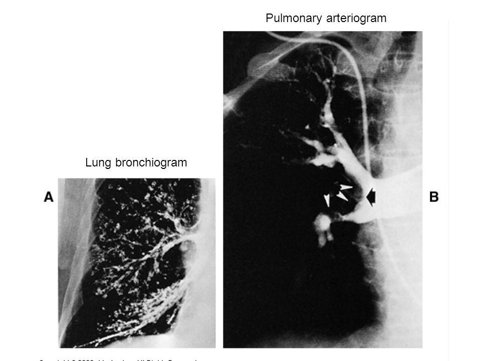 Lung bronchiogram Pulmonary arteriogram