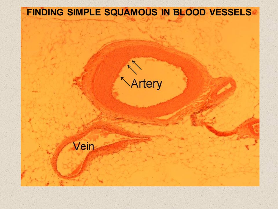 FINDING SIMPLE SQUAMOUS IN BLOOD VESSELS