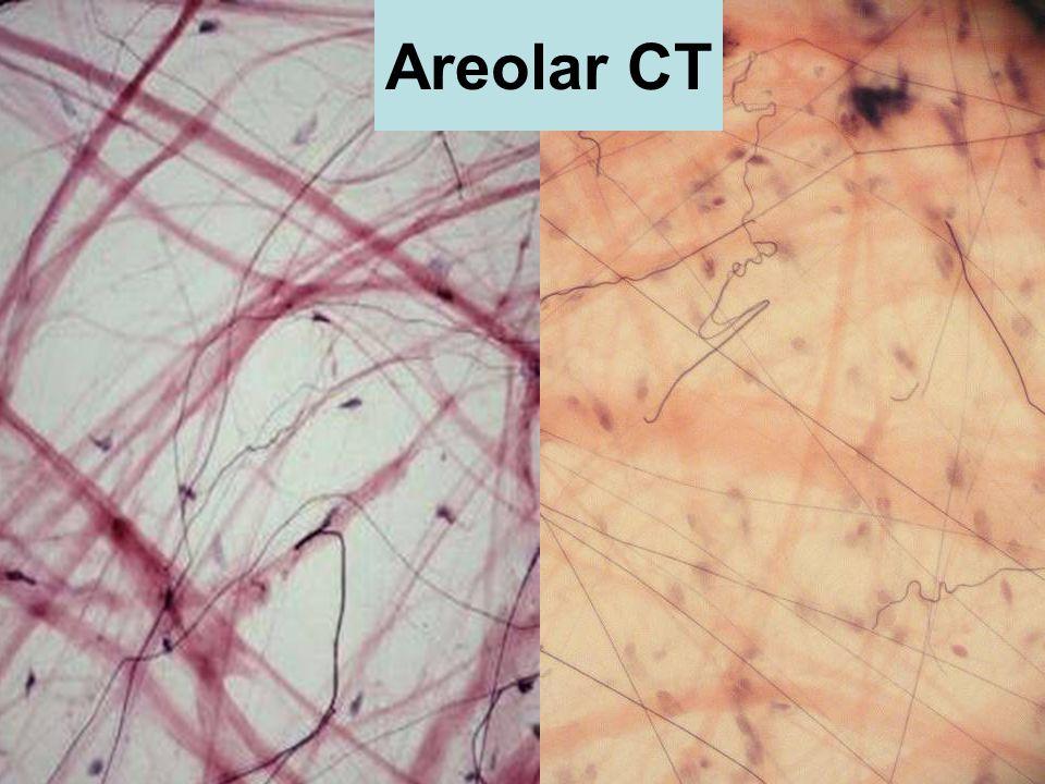 Areolar CT