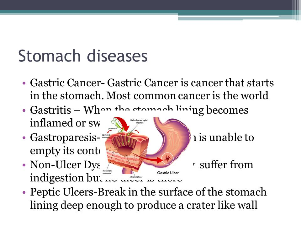 Stomach diseases Gastric Cancer- Gastric Cancer is cancer that starts in the stomach.