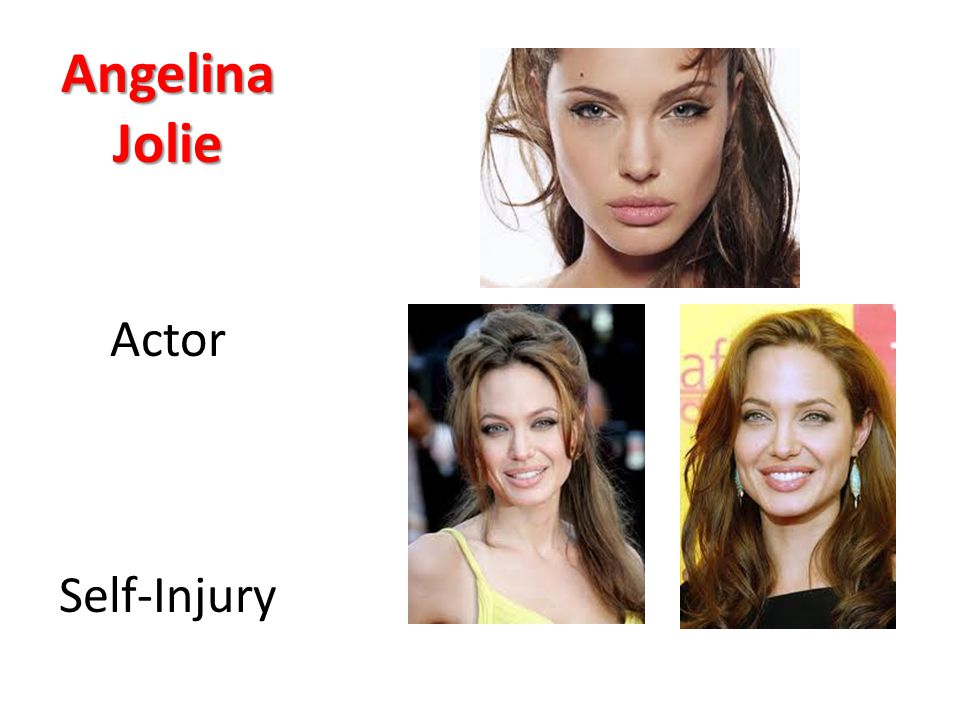 Angelina Jolie Actor Self-Injury