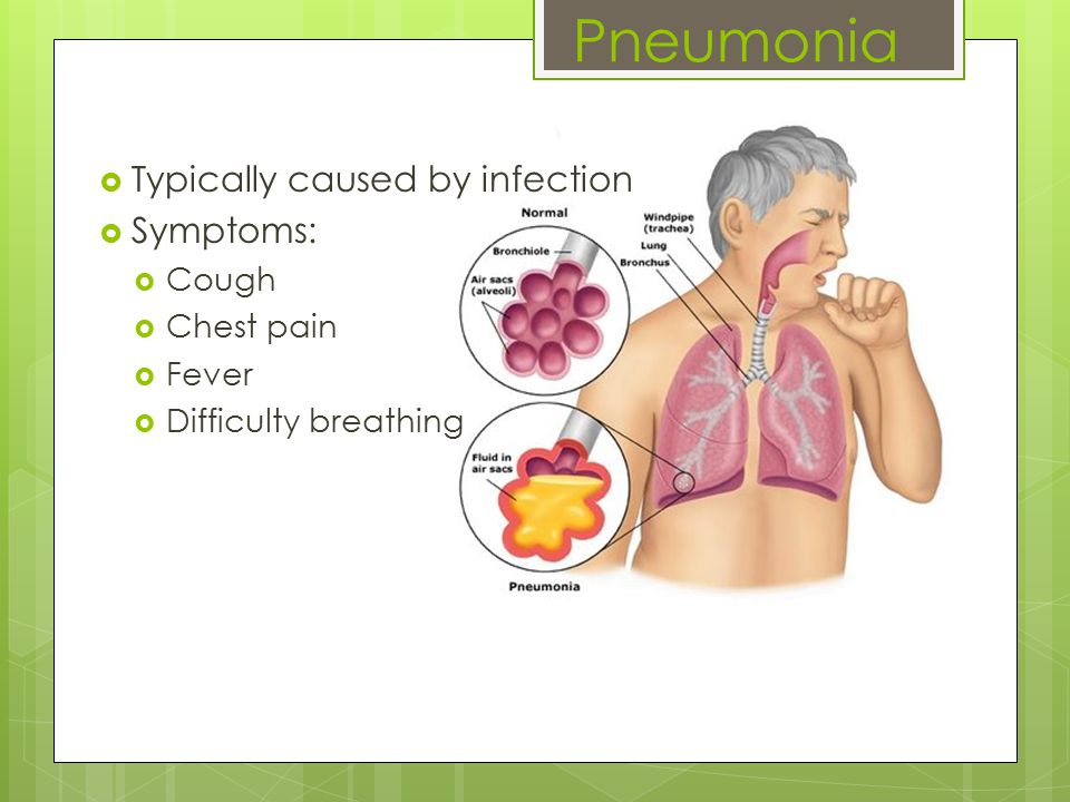 Pneumonia  Typically caused by infection  Symptoms:  Cough  Chest pain  Fever  Difficulty breathing