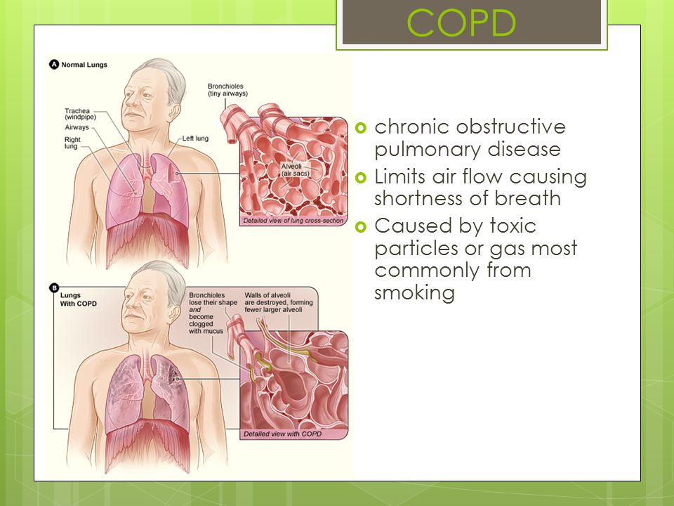 Pneumonia  Typically caused by infection  Symptoms:  Cough  Chest pain  Fever  Difficulty breathing