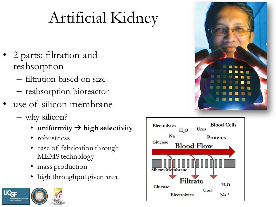 Artificial Kidney 2 parts: filtration and reabsorption – filtration based on size – reabsorption bioreactor use of silicon membrane – why silicon.