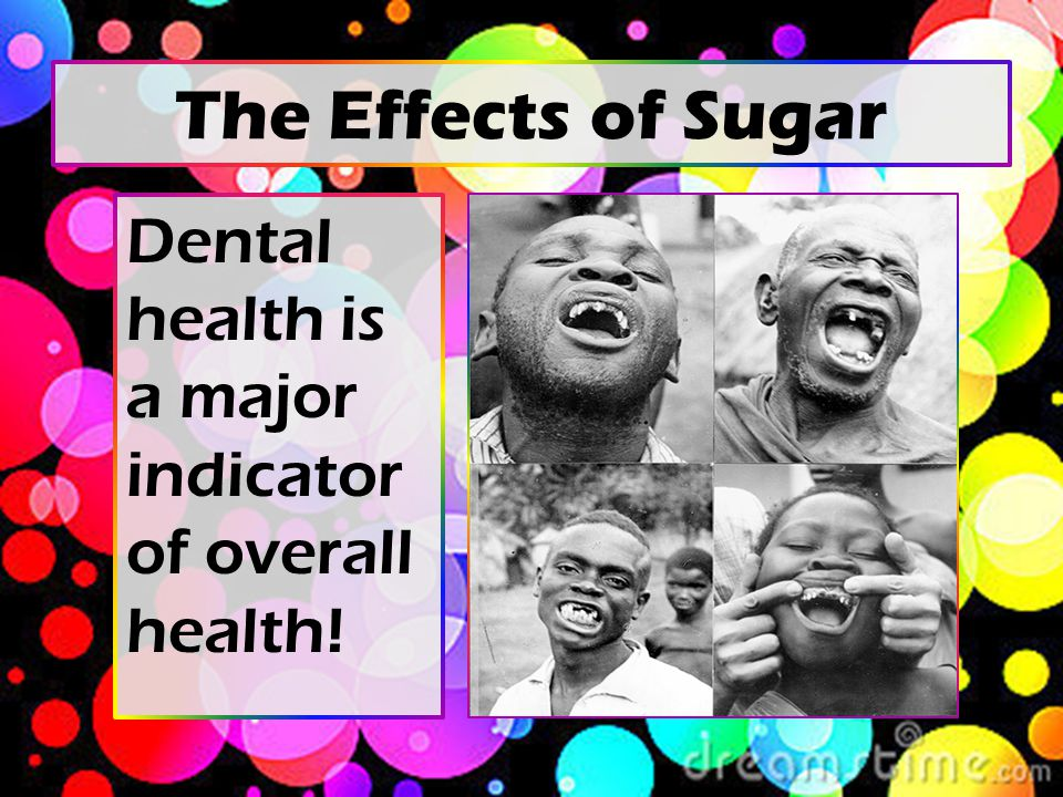 The Effects of Sugar Dental health is a major indicator of overall health!
