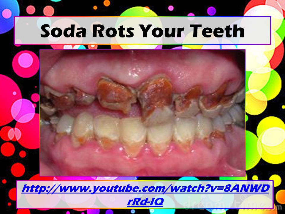 Your Bones on Soda Normal Bones Years of Heavy Soda Intake