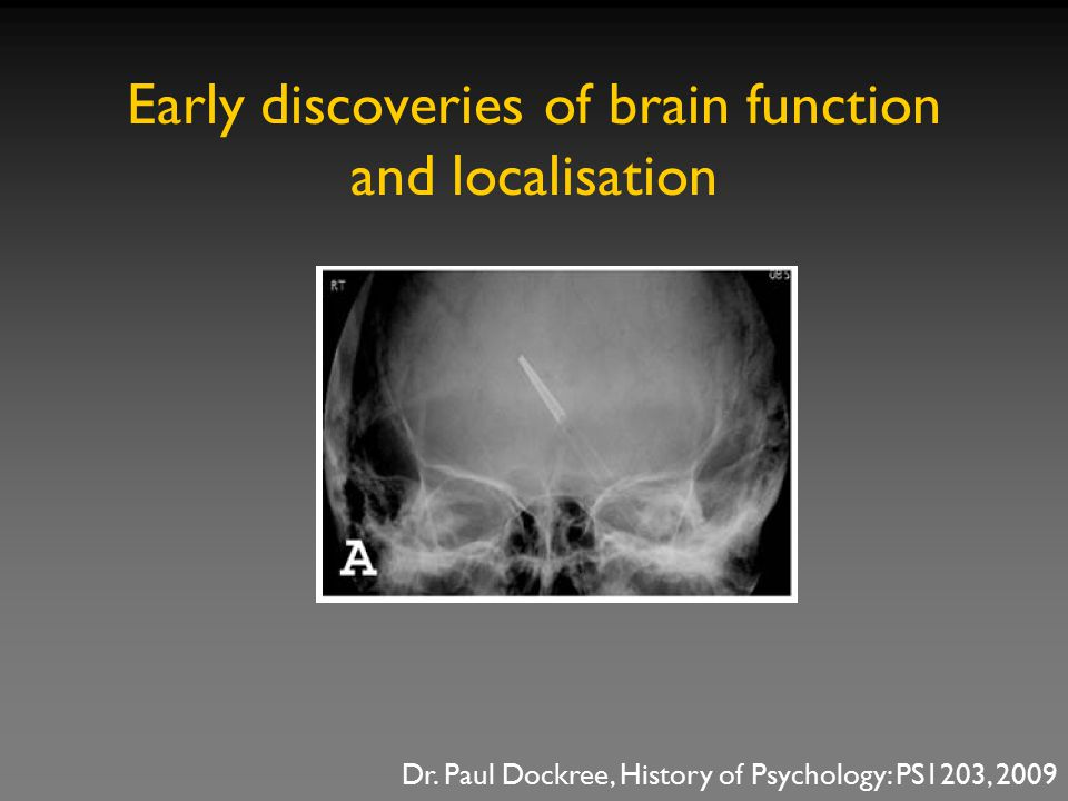 Early discoveries of brain function and localisation Dr. Paul Dockree, History of Psychology: PS1203, 2009