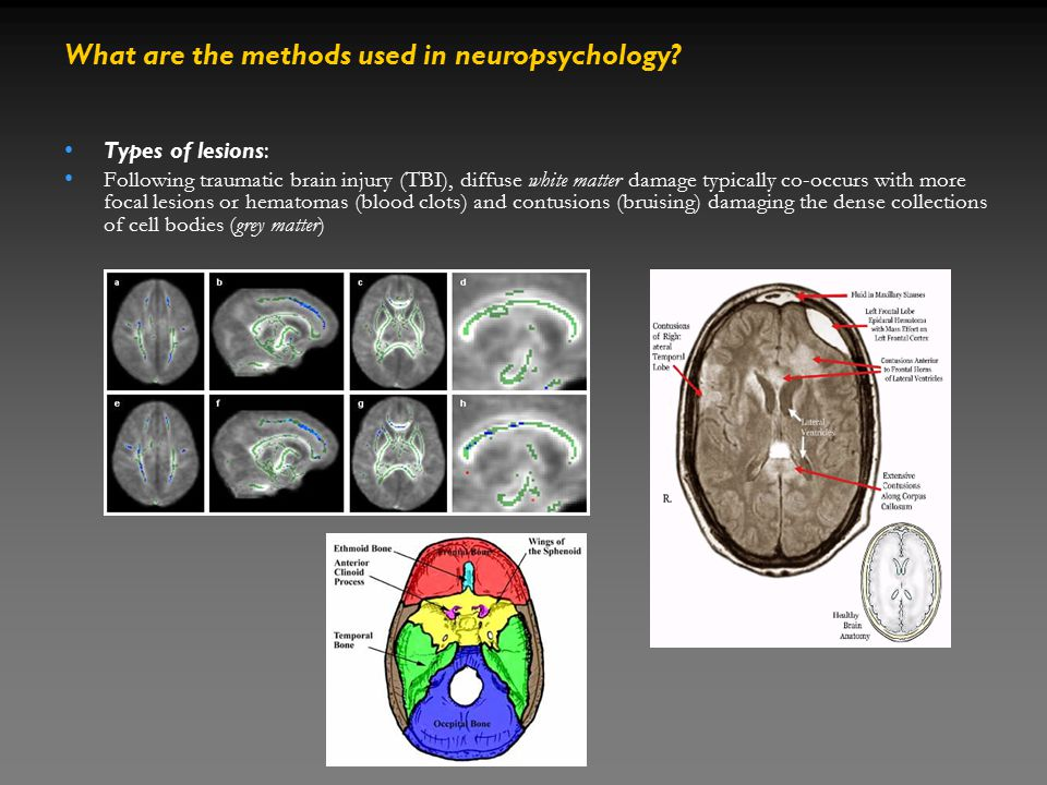 Types of lesions: Following traumatic brain injury (TBI), diffuse white matter damage typically co-occurs with more focal lesions or hematomas (blood