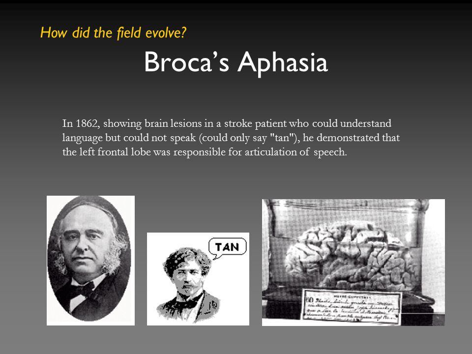 Broca's Aphasia In 1862, showing brain lesions in a stroke patient who could understand language but could not speak (could only say