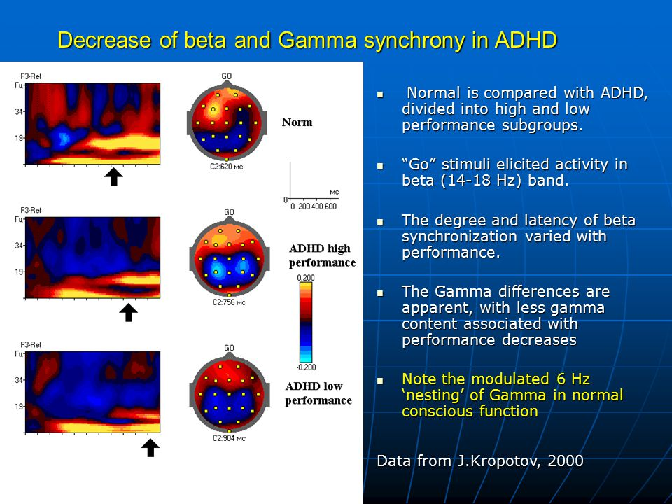 Decrease of beta and Gamma synchrony in ADHD Normal is compared with ADHD, divided into high and low performance subgroups. Normal is compared with AD